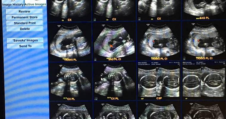 Honey, I'm Pregnant!!